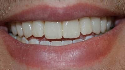 Veneers - General and Mobile Dentistry in Parker CO | Clear ...